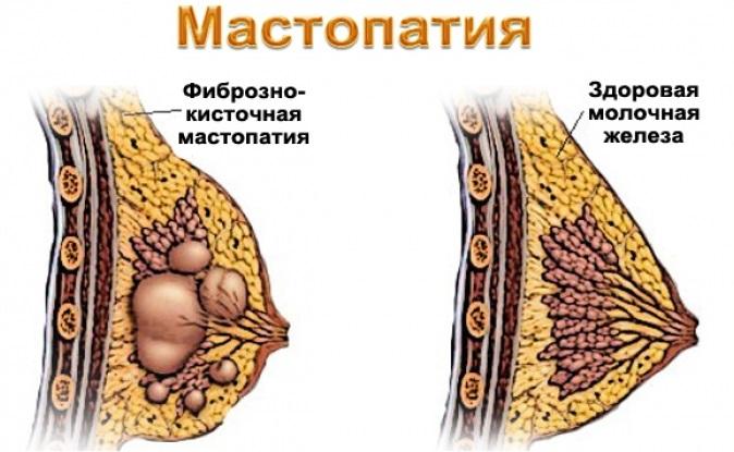 Мастопатия при беременности и после. Почему?