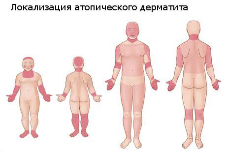 Профилактика и лечение атопического дерматита