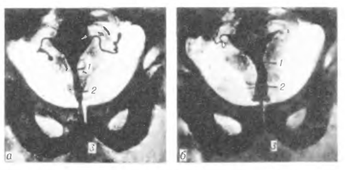 Истмико- цервикальная недостаточность во время беременности