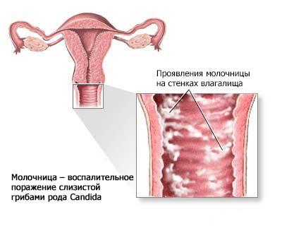 Молочница перед беременностью