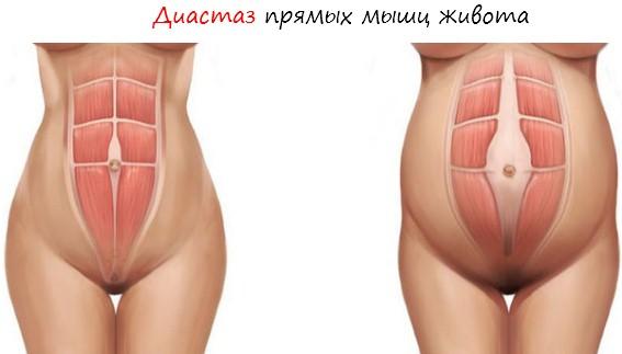 Диастаз - растяжки при беременности и после