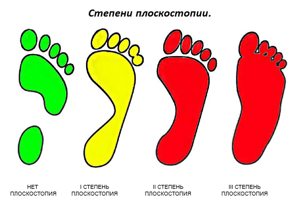 Профилактика детского плоскостопия и его лечение