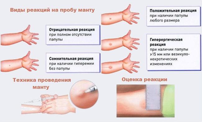 многих статьях можно ли делать прививку бцж если ребенок покашливает виду материала