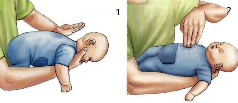 Первая помощь ребенку, который подавился