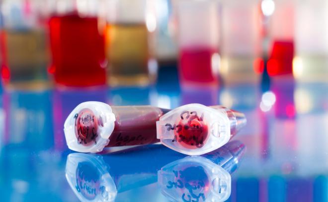 Пуповинная кровь на стволовые клетки